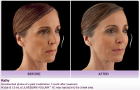 Nashville Centre for Laser and Facial Surgery